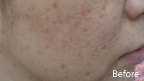 Cicatrici acneice inainte de tratament cu Nd:YAG 532nm
