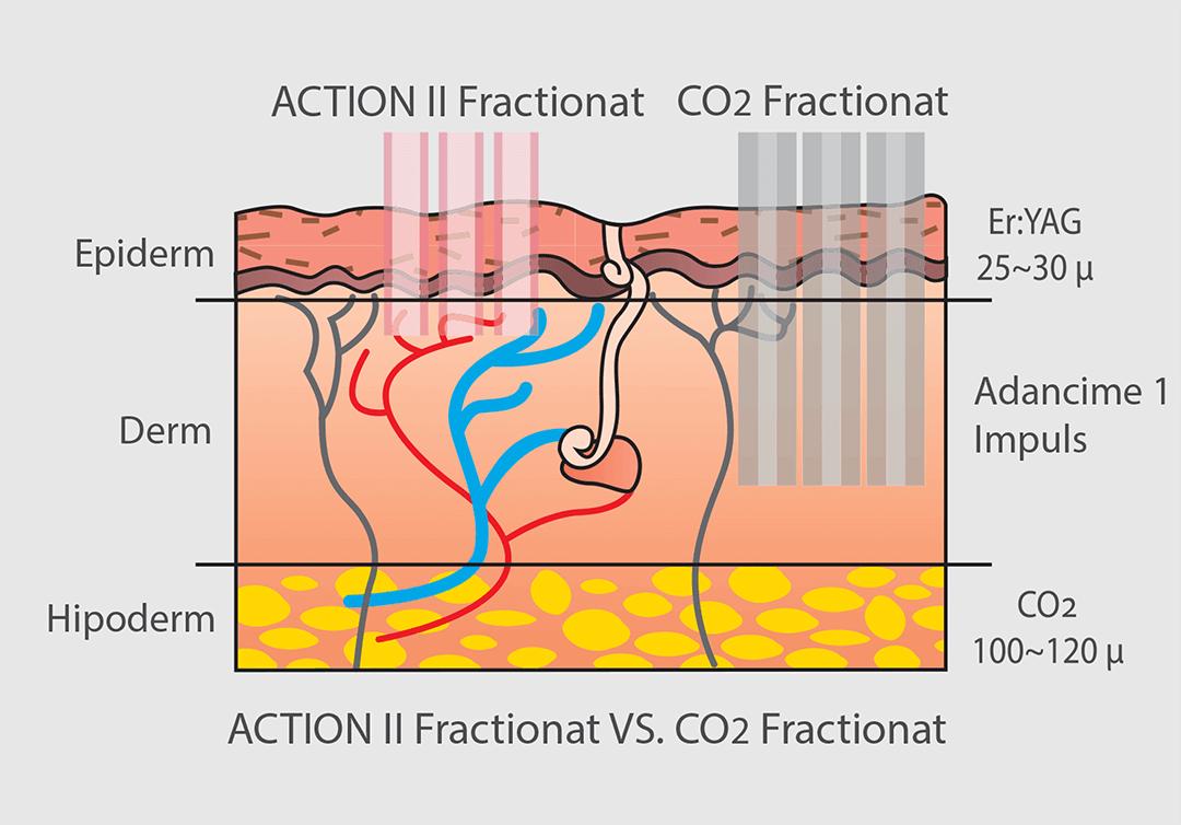 Laser Er:YAG Action II Fractionat vs Laser CO2 Fractionat.