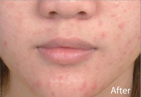 Pielea dupa tratamentul laser anti-acnee Spectra XT