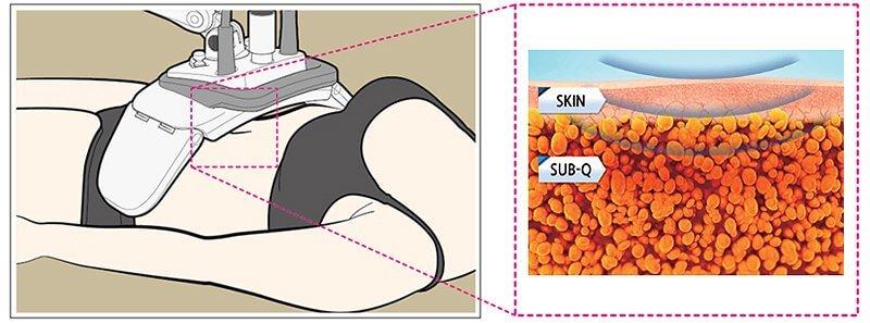 enCurve - Actiunea radiofrecventei asupra tesuturilor