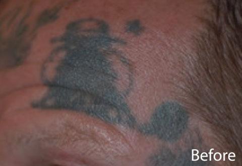 Reducere Tatuaje cu Indepartare Tatuaje Spectra XT