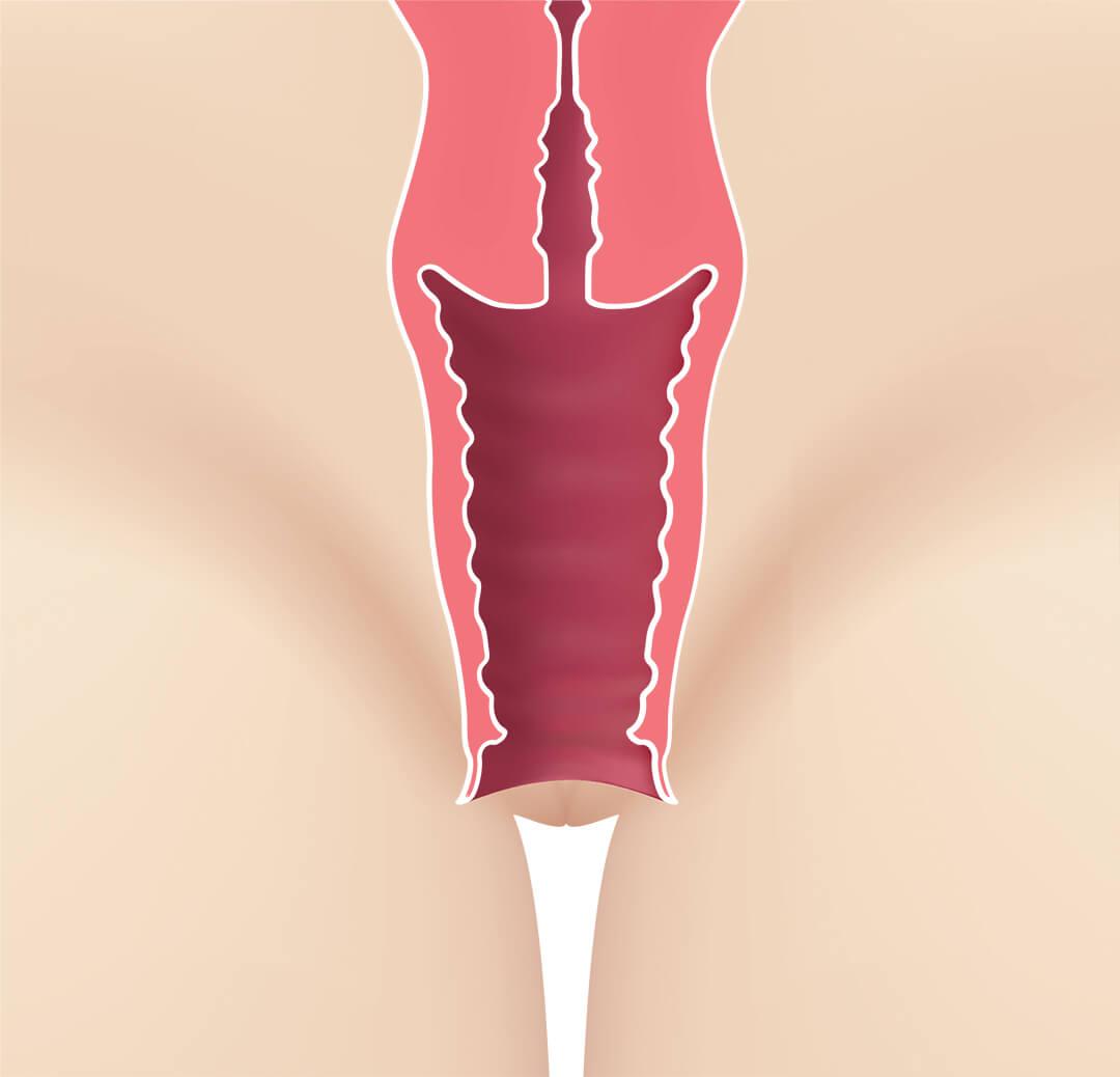 Laser Er:YAG pentru rejuvenare vaginala - mod de actiune