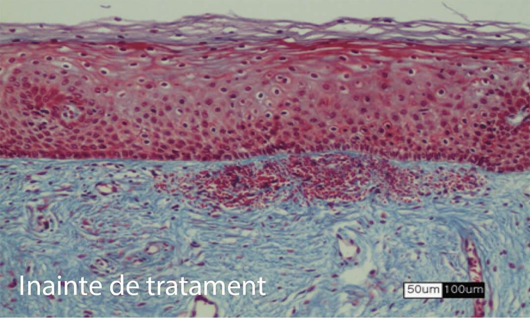 Test Elastica van Gieson - starea tesuturilor inainte de tratament