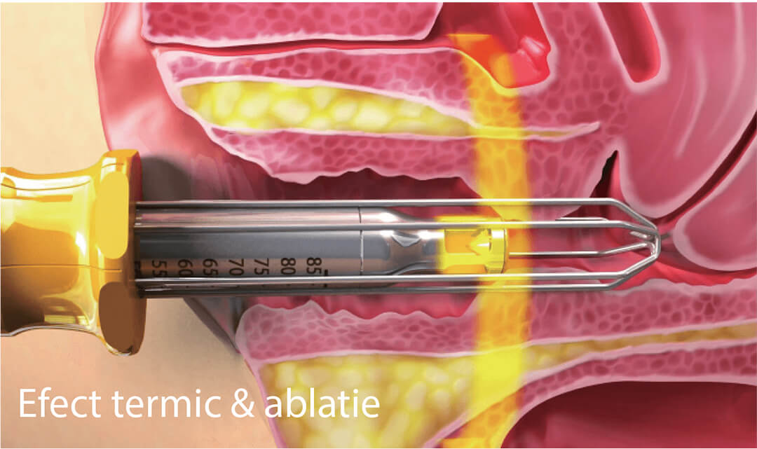 Efect termic si ablatie - Pasul 1 de tratament de rejuvenare vaginala