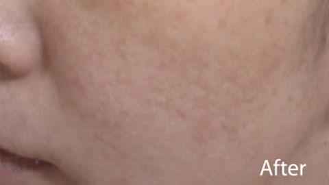 Cicatricile acneice dispar dupa tratament cu Spectra XT la 660 nm
