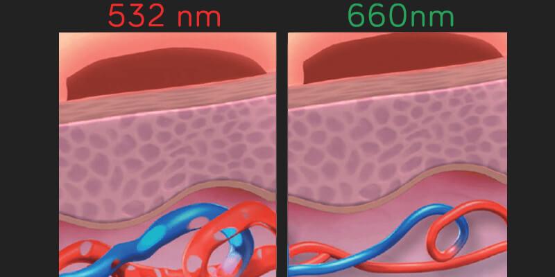 Efecte diferite ale lungimilor de unda Nd:YAG