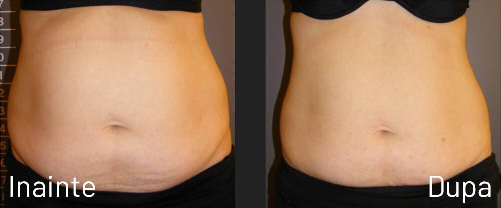 Modalitati de slabire abdomen