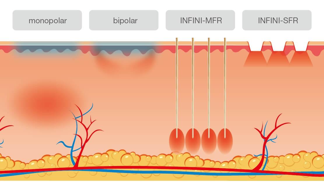 Zona de actiune a radiofrecventei Infini MFR