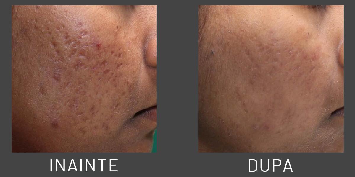Efectele Radiofrecventei asupra cicatricilor acneice