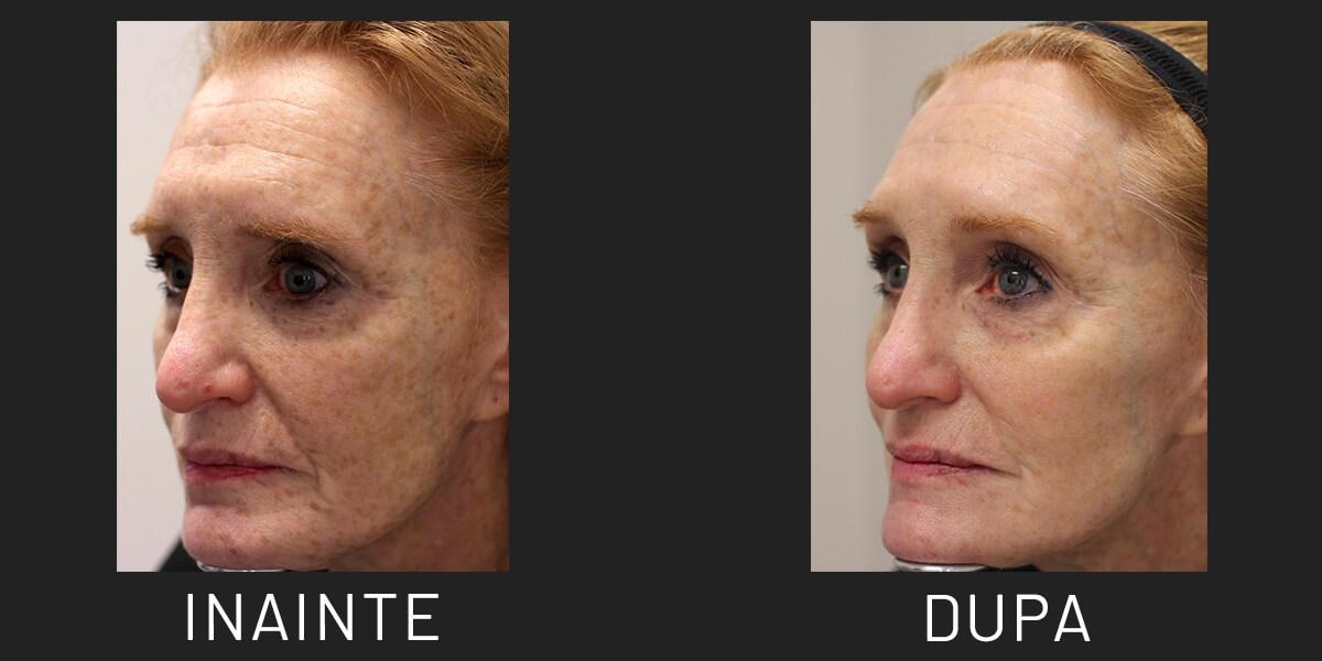 Eliminare pete pigmentare cu LaseMD
