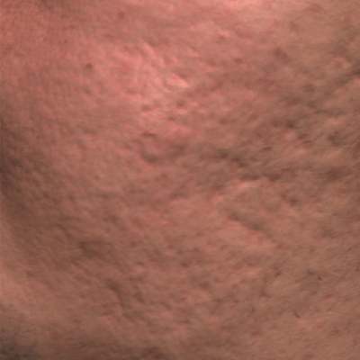 Tratament Facial cu LAserul picoplus - stadiul 1