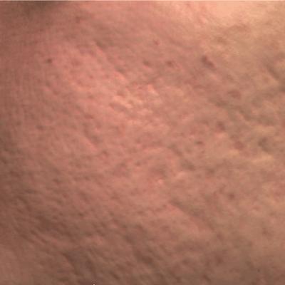Tratament Facial cu Laserul Picoplus - Stadiul 2