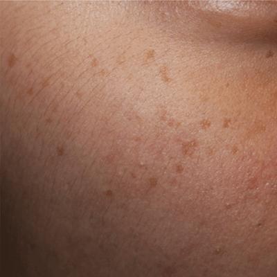 Tratament Facial cu Laserul Picoplus - Stadiul 3