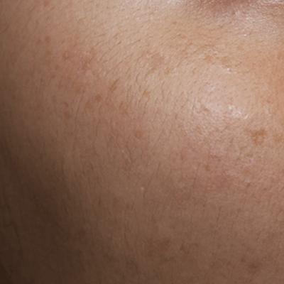 Tratament Facial cu Laserul Picoplus - Stadiul 4