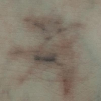 Tratament Facial cu Laserul Picoplus - Tatuaj - Stadiul 1