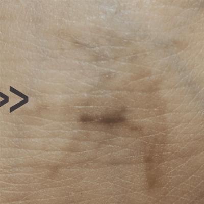 Tratament Facial cu Laserul Picoplus - Tatuaj - Stadiul 2