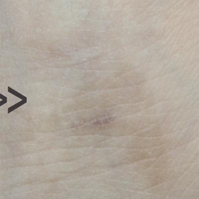 Tratament Facial cu Laserul Picoplus - Tatuaj - Stadiul 4