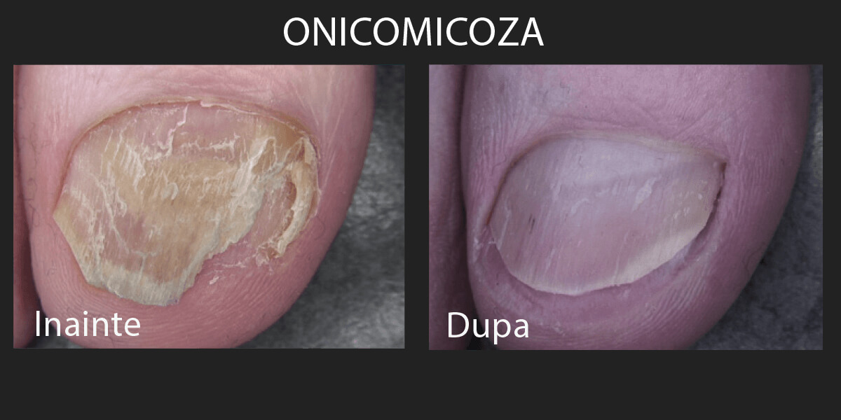 Inainte si dupa tratament laser pentru onicomicoza cu Lutronic Clarity