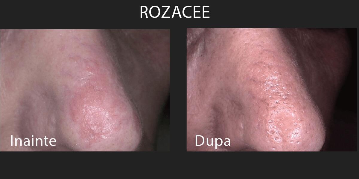 Rezultate tratament rozacee cu laser - Lutronic Clarity