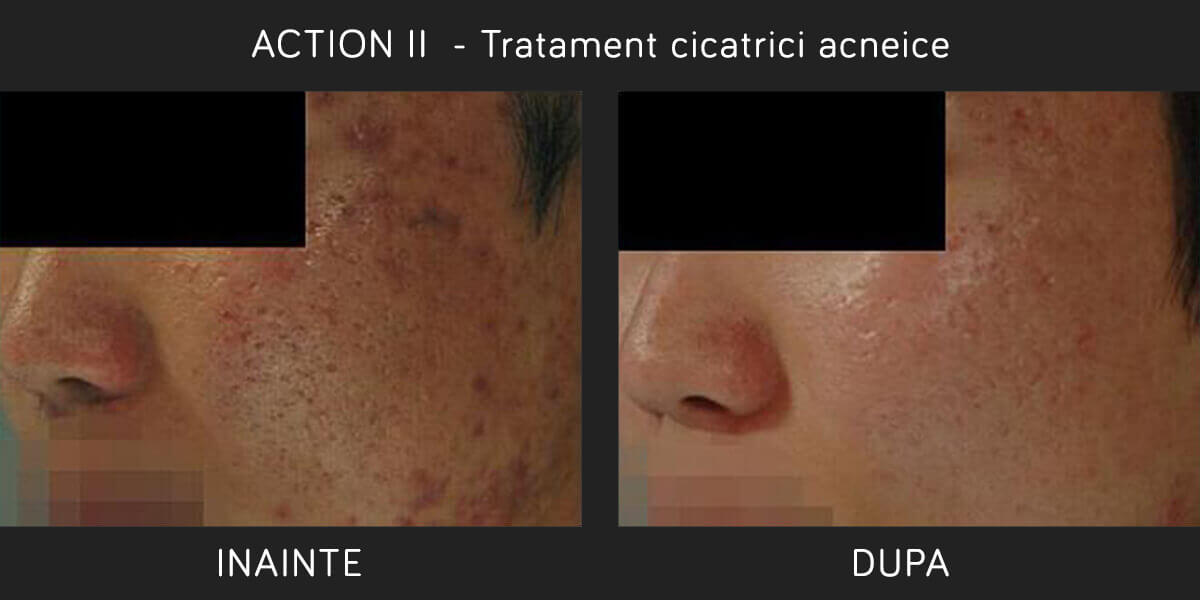 Inainte si Dupa Tratament Cicatrici Acneice cu Laser ER:YAG