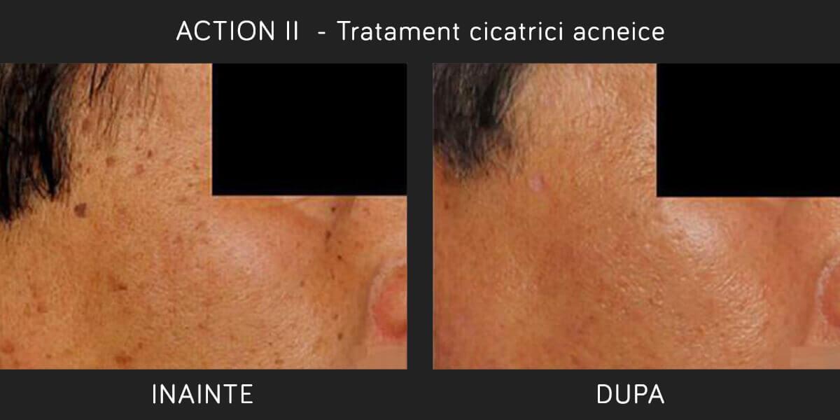 Inainte si Dupa Tratament Laser ER:YAG Cicatrici Acneice