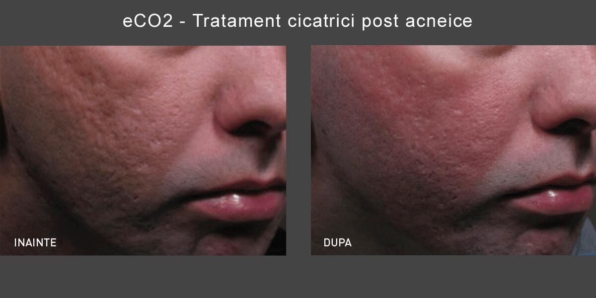 Rezultate tratament Cicatrici Post-Acneice cu Laser CO2 Lutronic Clarity