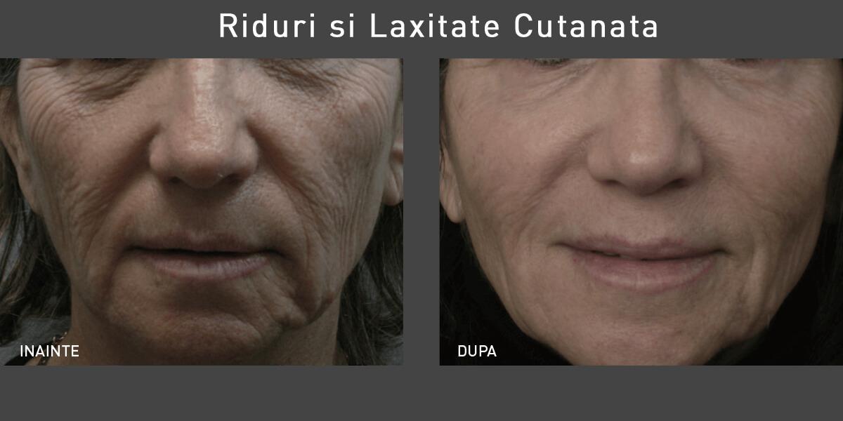 Rezultate tratament riduri si laxitate cutanata cu laser co2