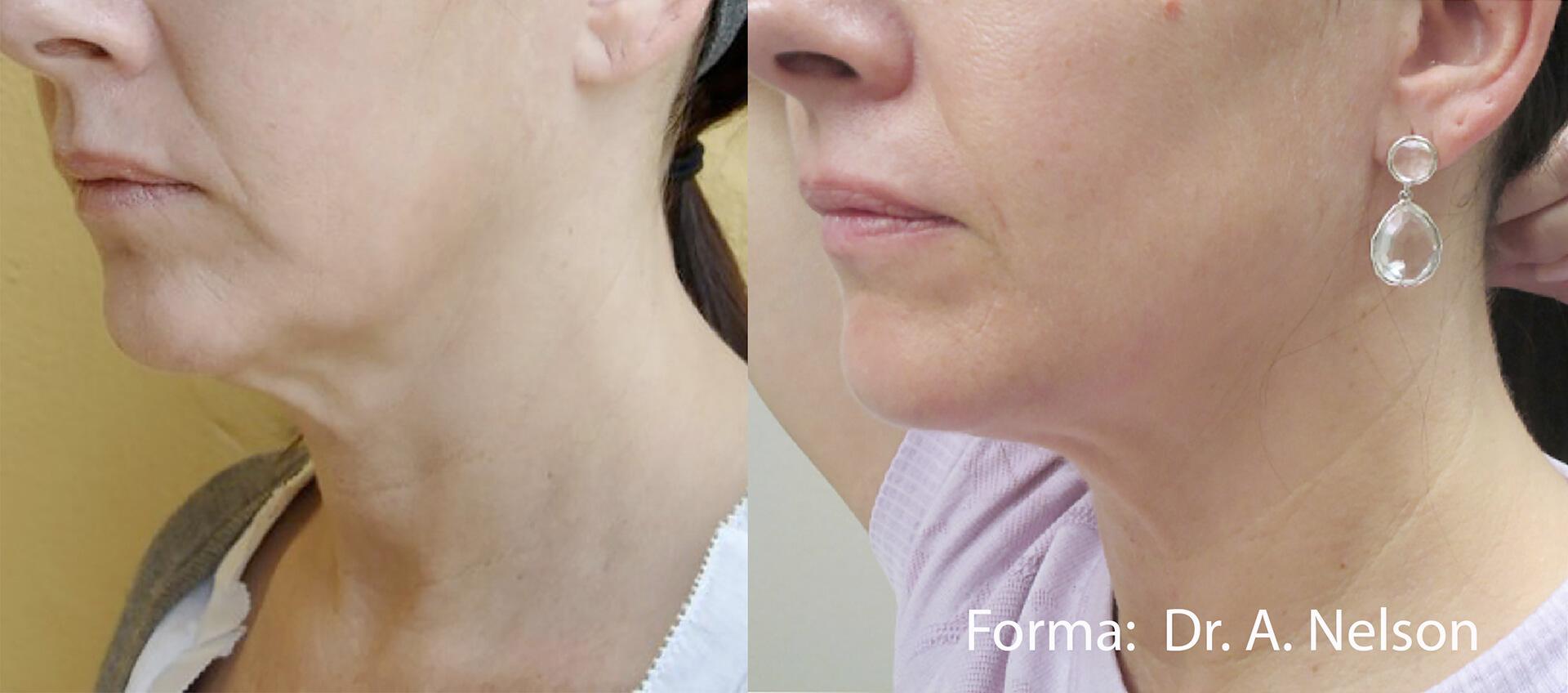 Inainte si dupa tratament facial cu Inmode Forma