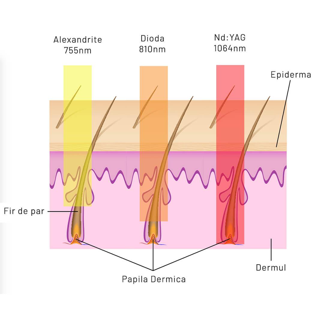 Efectul diverselor tipuri de laser medical asupra folicului pilos
