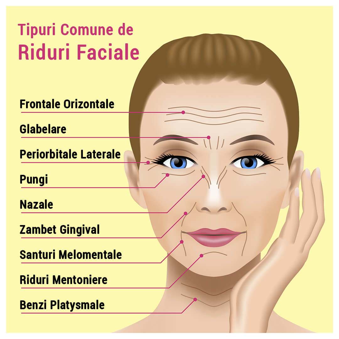 tipuri de riduri faciale