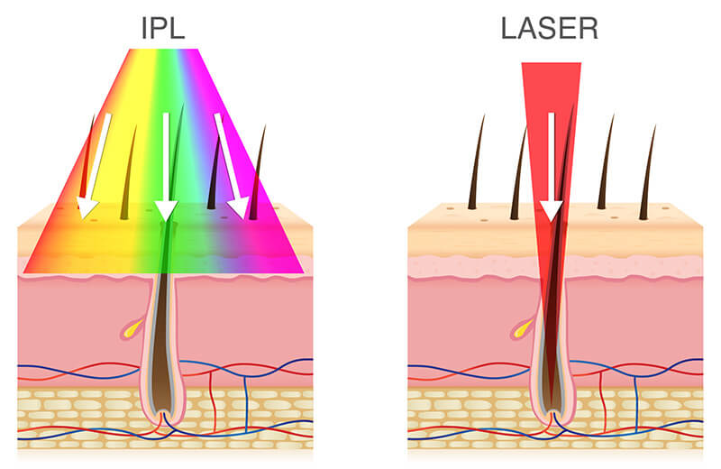 IPL vs Laser pentru epilare definitiva