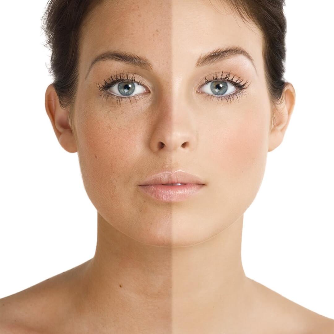 exemplu de leziuni pigmentare