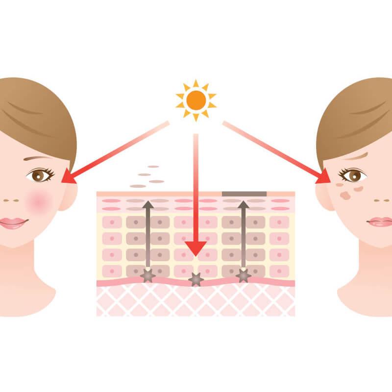 Cum apar leziunile pigmentare in urma arsurilor solare