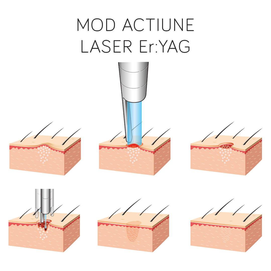 Modul de Actiune al Laser-ului Er:YAG