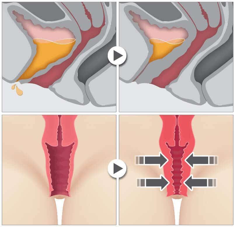 Cum Functioneaza Rejuvenarea Vaginala