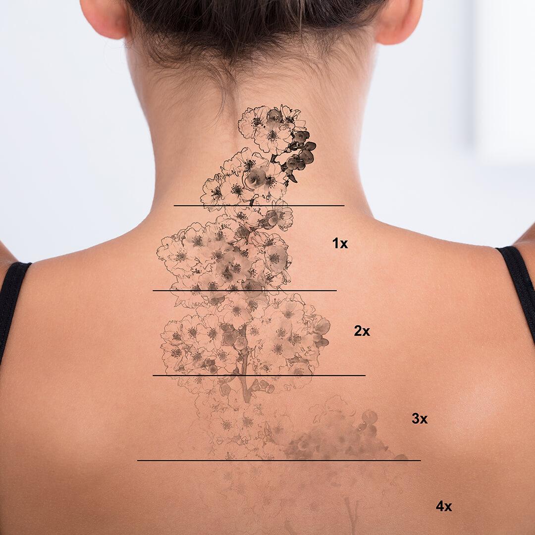 niveluri de indepartare al tatuajelor cu laser