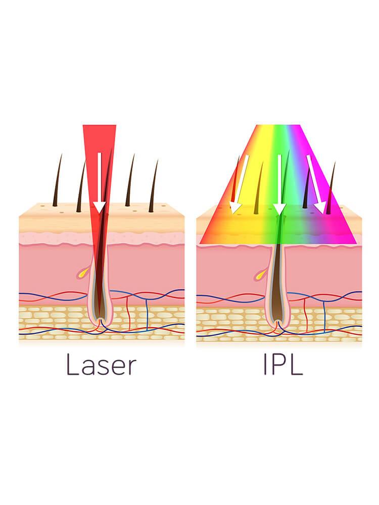 Modul de actiune laser vs IPL