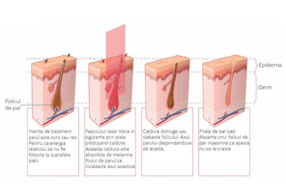 efectele tratamentului cu aparatul de laser alexandrite asupra foliculilor pilosi