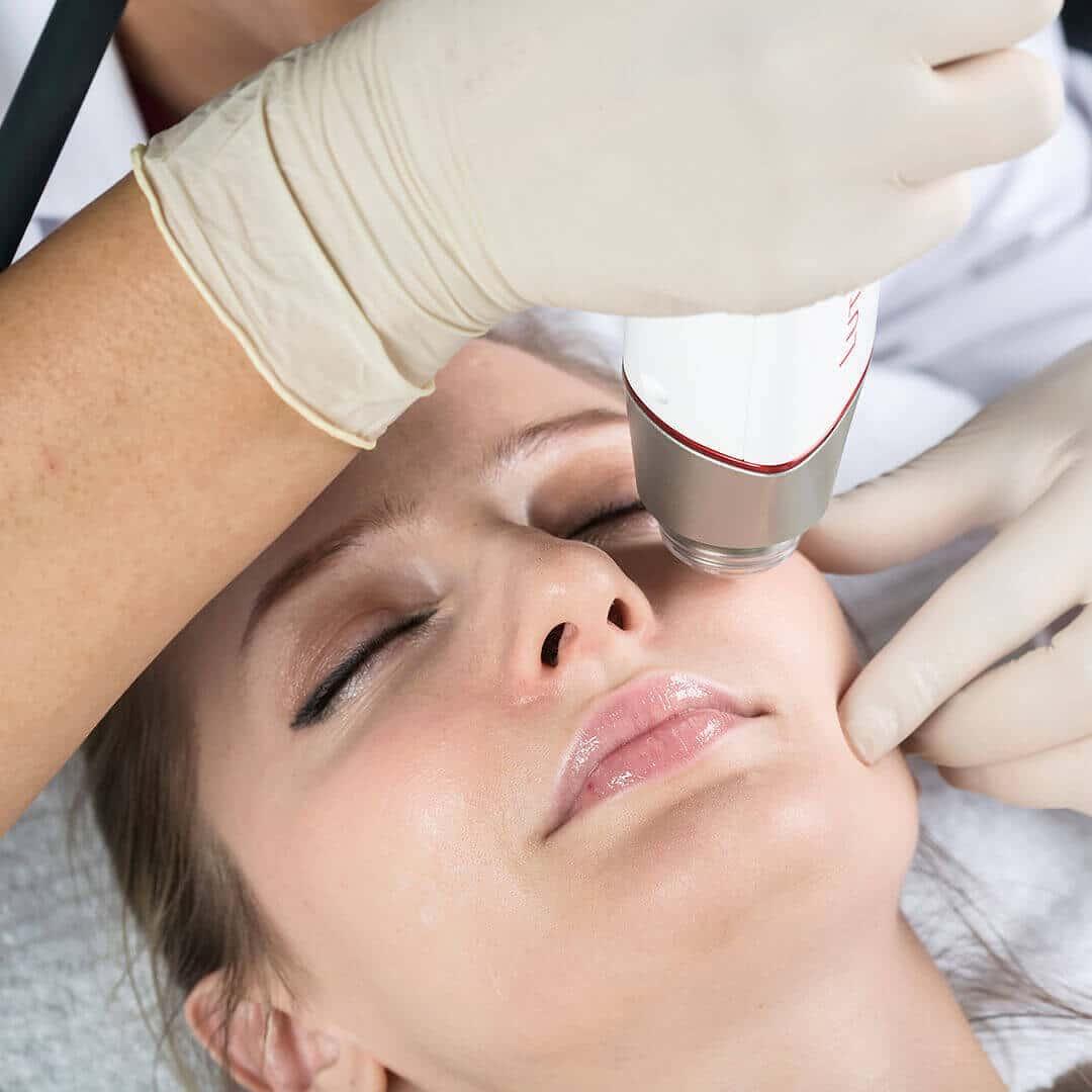 Tratament facial cu Aparatul Lutronic Infini
