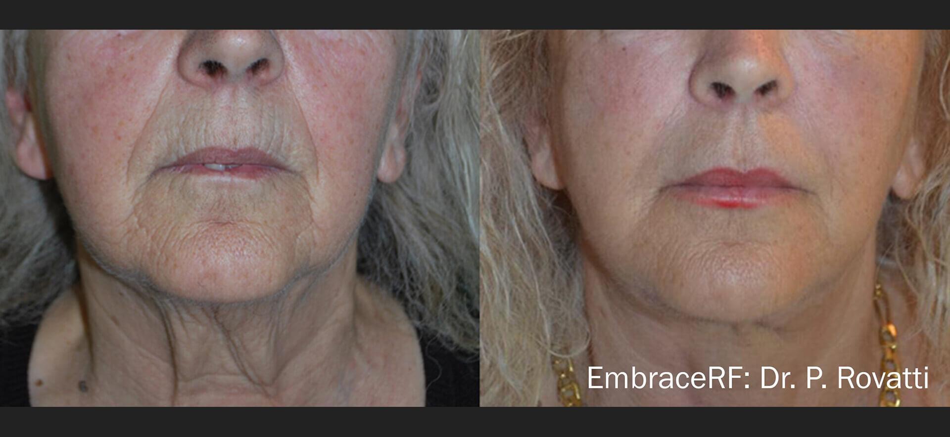 Rejuvenare faciala si reducere riduri cu aparatul EmbraceRF de la Inmode