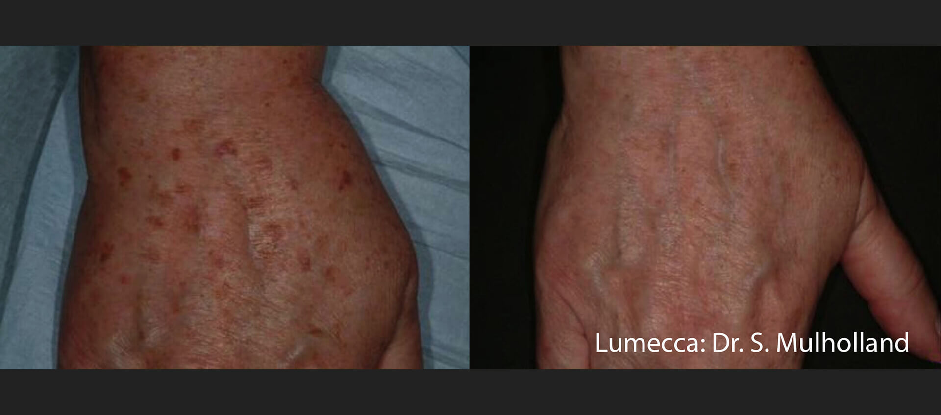Rezultate Tratament leziuni pigmentare cu apl;icatorul Inmode Lumecca