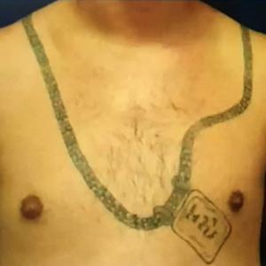 Inainte de Tratament indepartare tatuaje